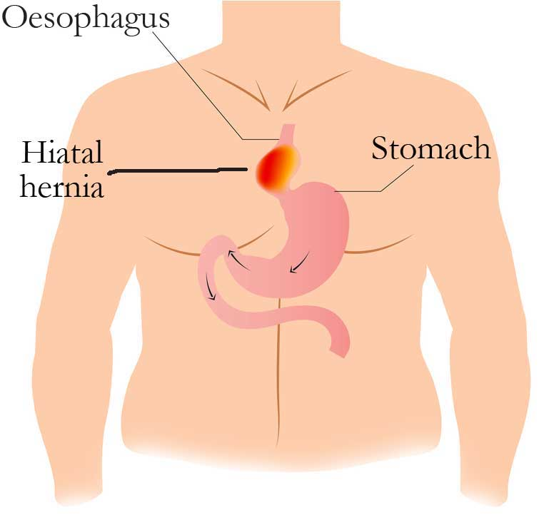 Sliding hiatal hernias and the piob mor - Bagpipe News